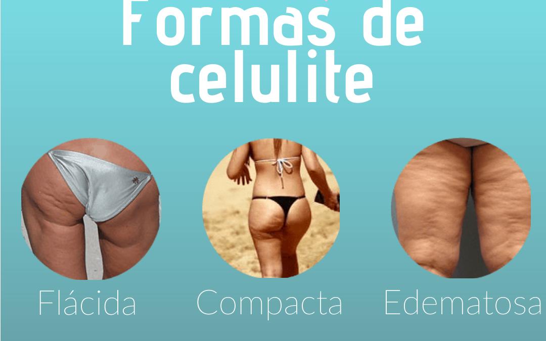 Formas de celulite