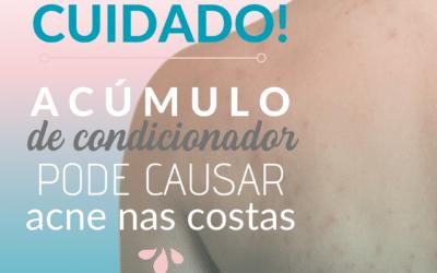 O acúmulo de condicionador pode causar acne nas costas.