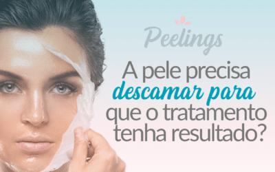 Peelings – a pele precisa descamar para que o tratamento tenha resultado?