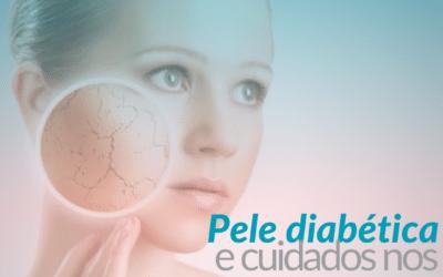 Pele diabética e os cuidados nos tratamentos estéticos