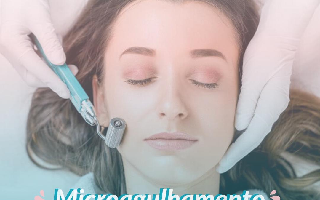 Microagulhamento para tratamento de melasma